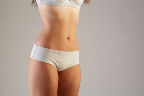 Why Your Stretch Marks Are Fine