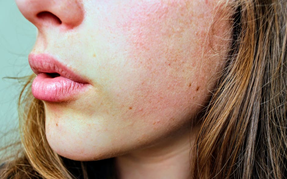The Most Common Culprits of Skin Damage To Look For